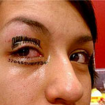 Eye tattoo gone bad